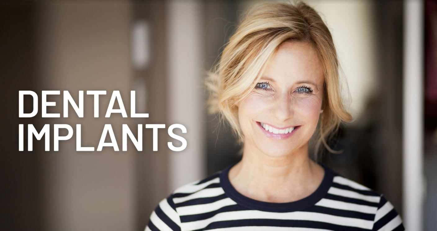 dental implants temecula