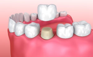 Dental Crowns Temecula
